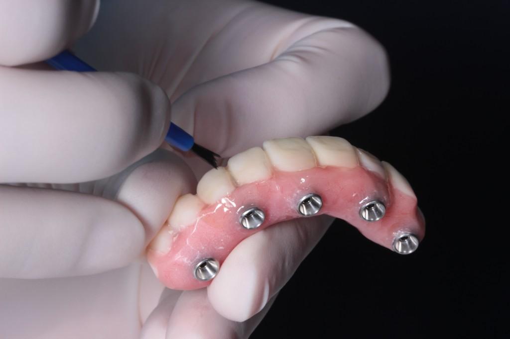 Zahnprothese oberkiefer ohne gaumenplatte