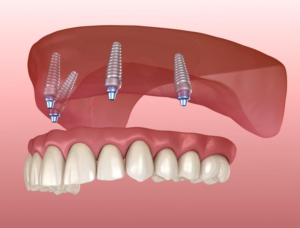 Zahnprothese oberkiefer mit gaumenplatte