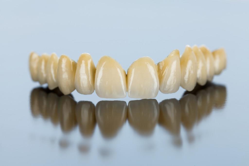 Oberkiefer ohne gaumenplatte zahnprothese Gaumenfreie vollprothese