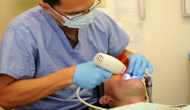 Die 7 Vorteile von ästhetischen Zahnfüllungen