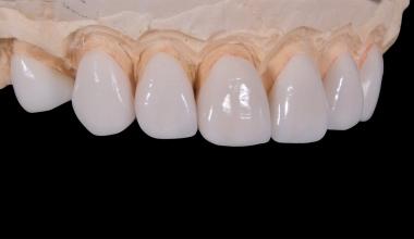Warum muss man die verlorenen Zähne schnell ersetzen?